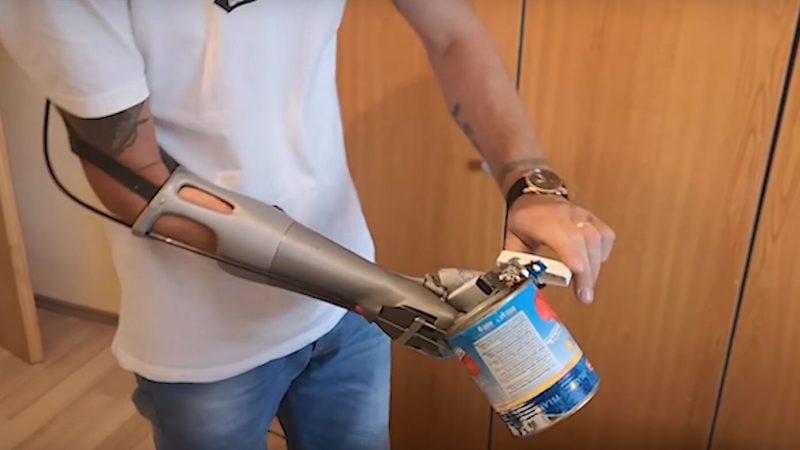 Veliki svjetski uspjeh za hrvatsku protetičku ruku Maker Hand